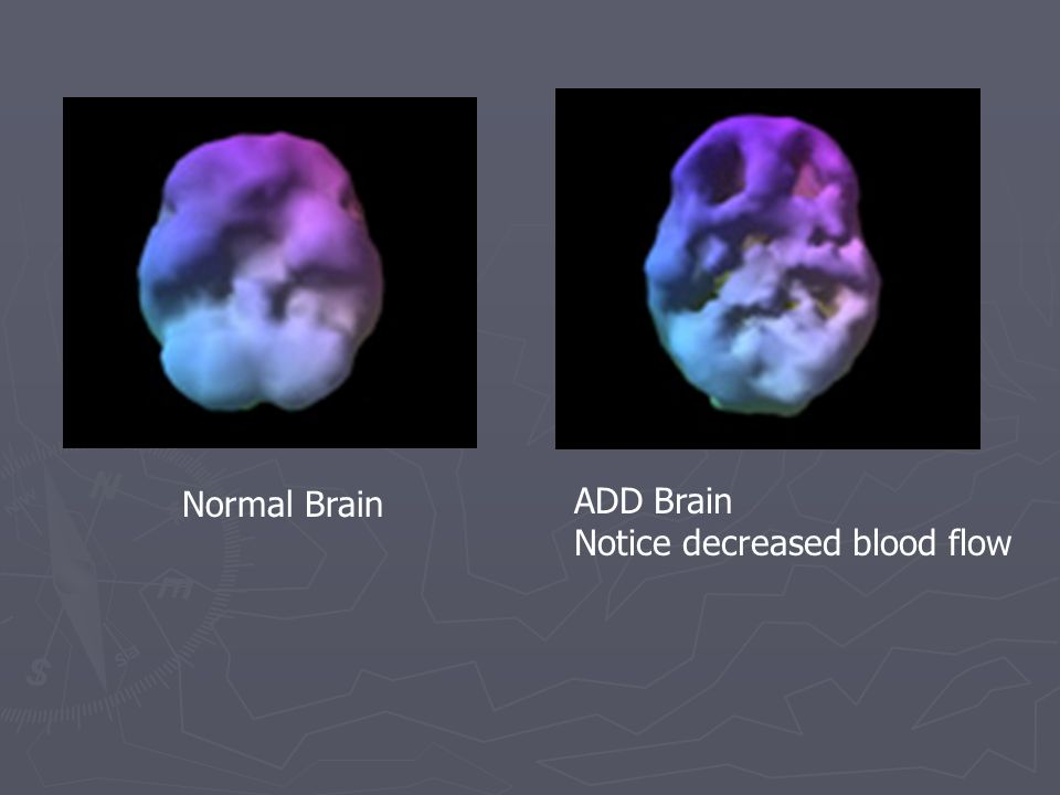Normal Brain ADD Brain Notice decreased blood flow