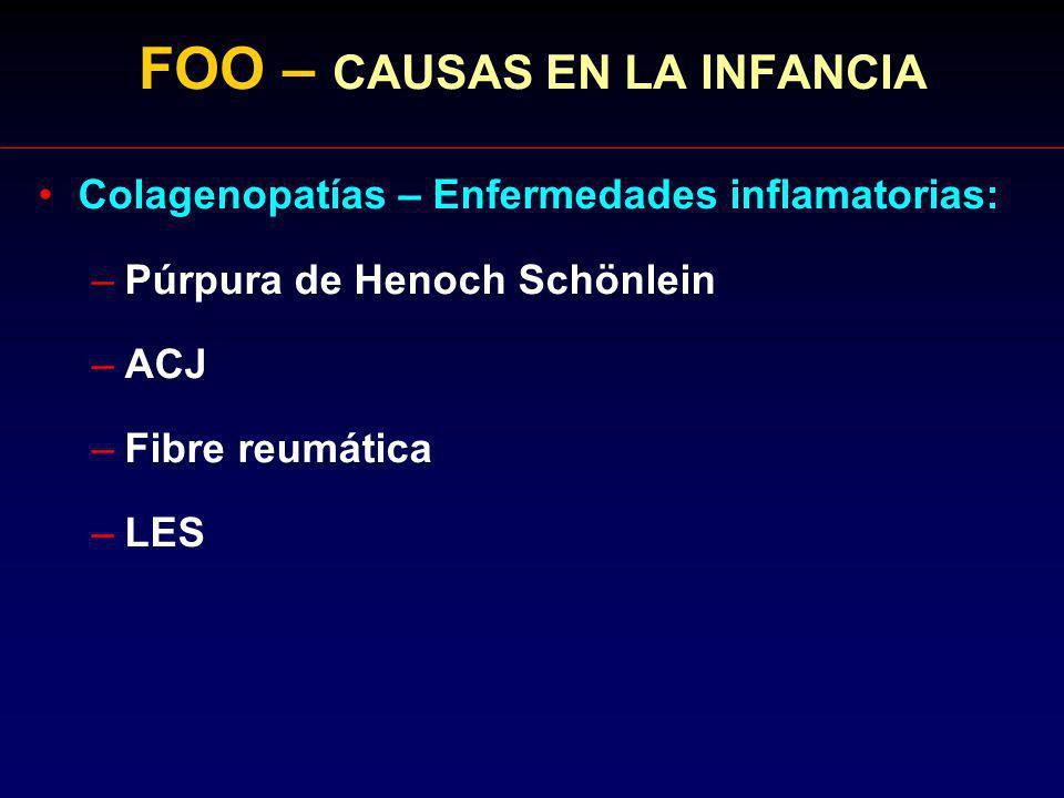 FOO – CAUSAS EN LA INFANCIA Colagenopatías – Enfermedades inflamatorias: –Púrpura de Henoch Schönlein –ACJ –Fibre reumática –LES