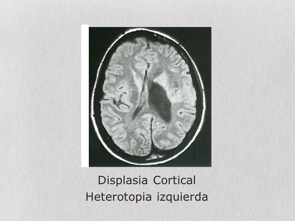 Displasia Cortical Heterotopia izquierda