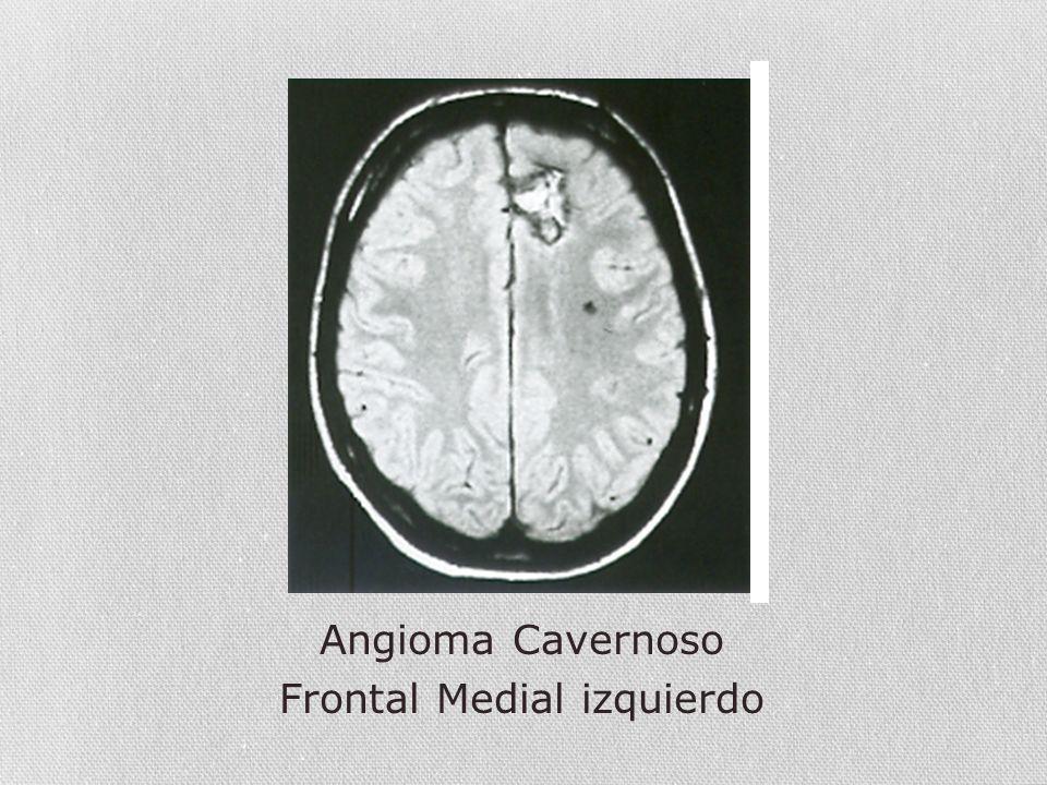 Angioma Cavernoso Frontal Medial izquierdo