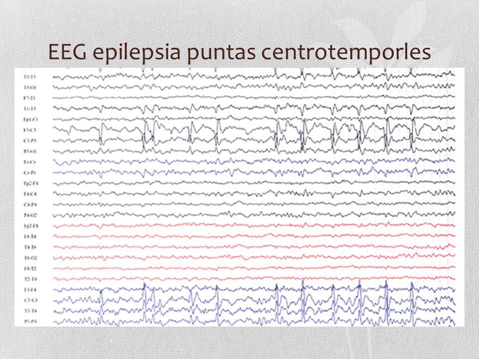 EEG epilepsia puntas centrotemporles