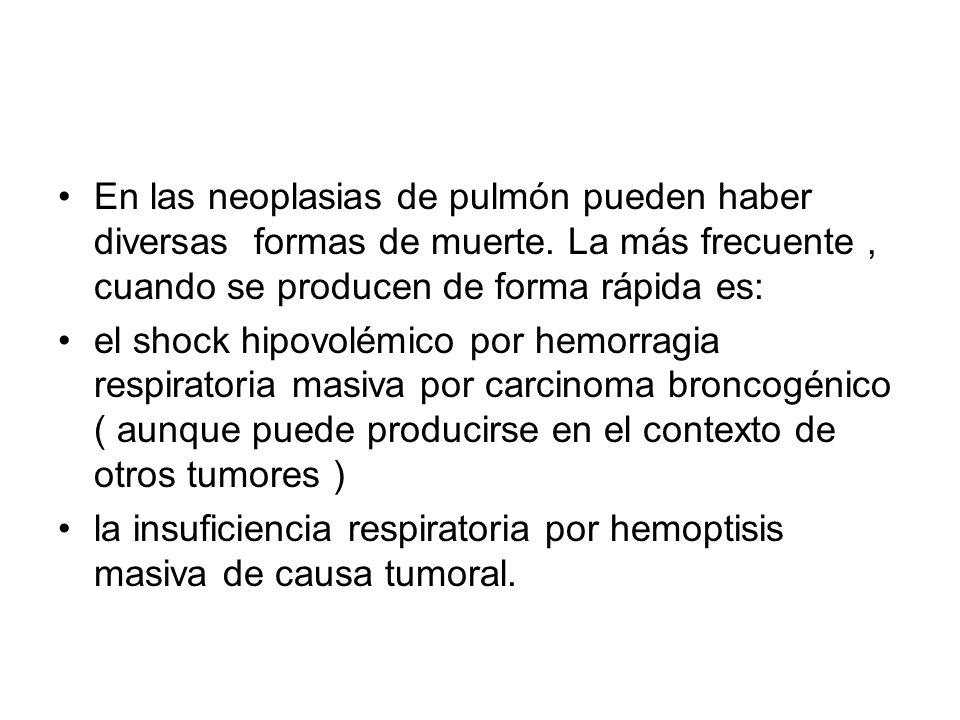 En las neoplasias de pulmón pueden haber diversas formas de muerte. La más frecuente, cuando se producen de forma rápida es: el shock hipovolémico por