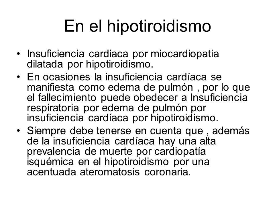 En el hipotiroidismo Insuficiencia cardiaca por miocardiopatia dilatada por hipotiroidismo. En ocasiones la insuficiencia cardíaca se manifiesta como