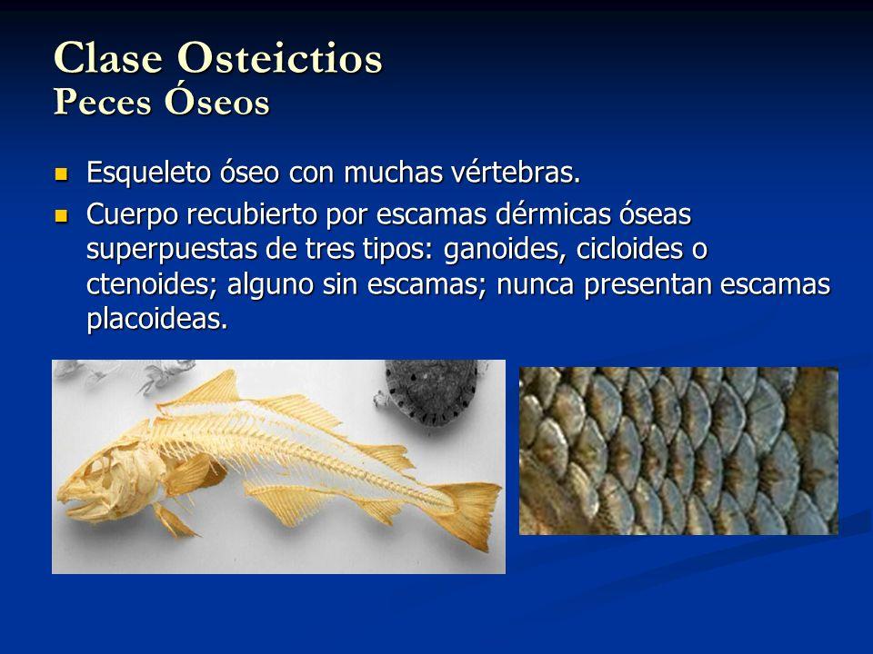 Clase Osteictios Peces Óseos Esqueleto óseo con muchas vértebras. Esqueleto óseo con muchas vértebras. Cuerpo recubierto por escamas dérmicas óseas su