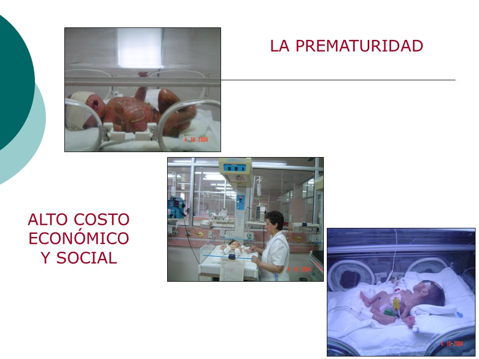 ETIOLOGIA Idiopática 50% de los casos RPM 25% (7.1-51,2%) Indicación medica y/o Iatrogénica 25% BJOG.April2003,volvol110(suppl20) Clinical Clinical Obstetrics and Gynecology.