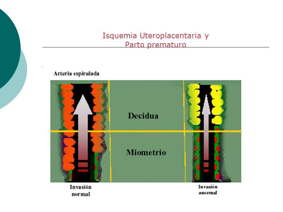Isquemia Uteroplacentaria y Parto prematuro