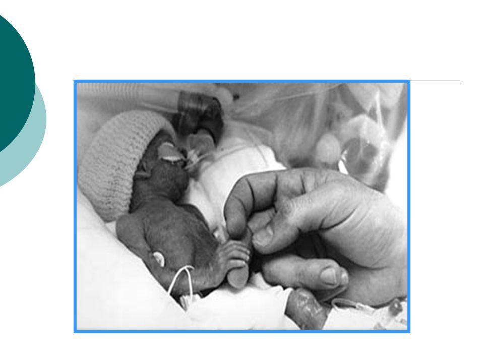 Infección e Inflamación Asociada en un 20-40% de todos los Partos prematuros.