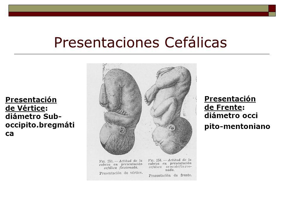 Presentaciones Cefálicas Presentación de Vértice: diámetro Sub- occipito.bregmáti ca Presentación de Frente: diámetro occi pito-mentoniano