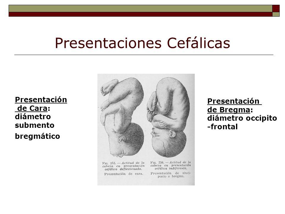Presentaciones Cefálicas Presentación de Cara: diámetro submento bregmático Presentación de Bregma: diámetro occipito -frontal