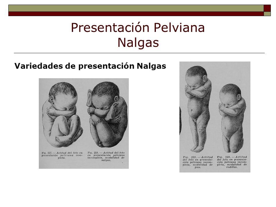 Presentación Pelviana Nalgas Variedades de presentación Nalgas