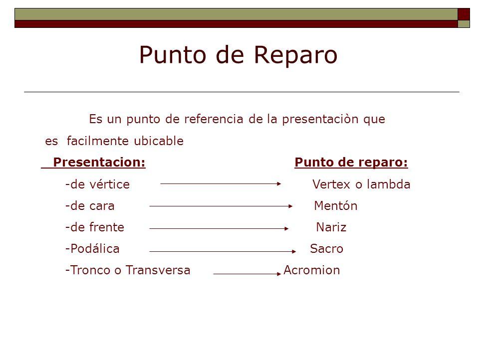 Punto de Reparo Es un punto de referencia de la presentaciòn que es facilmente ubicable Presentacion: Punto de reparo: -de vértice Vertex o lambda -de
