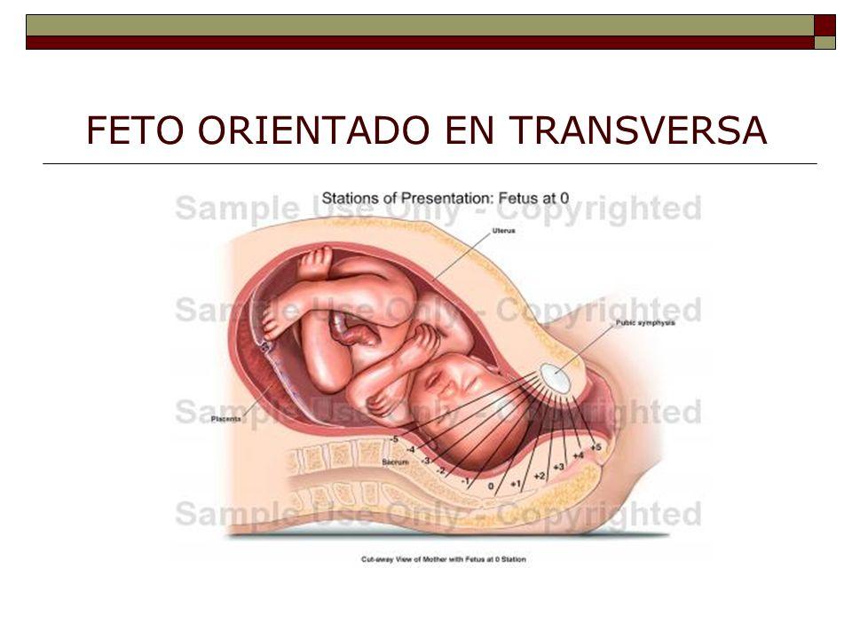FETO ORIENTADO EN TRANSVERSA