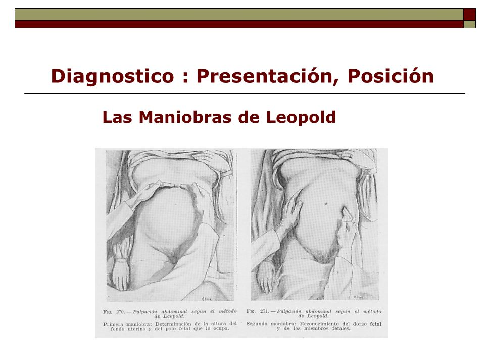 Diagnostico : Presentación, Posición Las Maniobras de Leopold