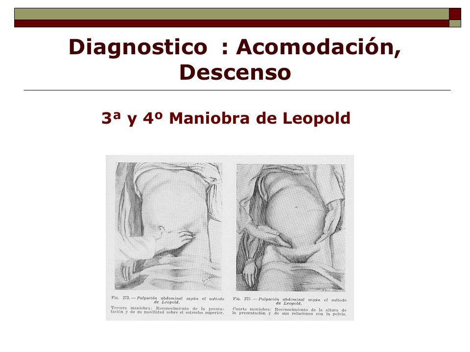Diagnostico : Acomodación, Descenso 3ª y 4º Maniobra de Leopold