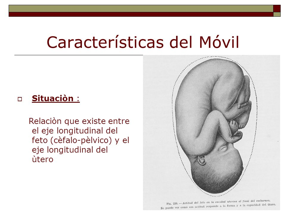 Características del Móvil Situaciòn : Relaciòn que existe entre el eje longitudinal del feto (cèfalo-pèlvico) y el eje longitudinal del ùtero