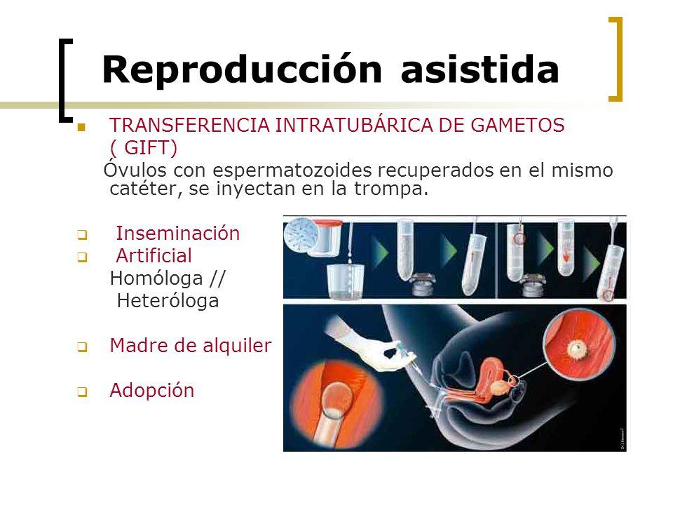 Reproducción asistida TRANSFERENCIA INTRATUBÁRICA DE GAMETOS ( GIFT) Óvulos con espermatozoides recuperados en el mismo catéter, se inyectan en la tro