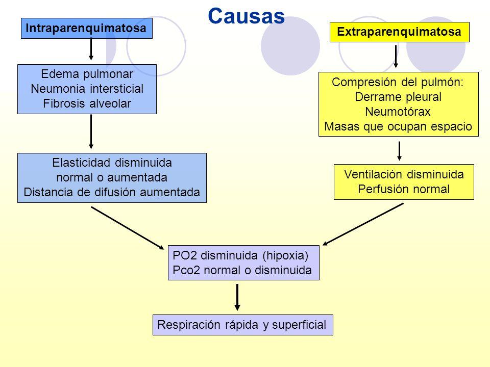 Intraparenquimatosa Extraparenquimatosa Edema pulmonar Neumonia intersticial Fibrosis alveolar Compresión del pulmón: Derrame pleural Neumotórax Masas
