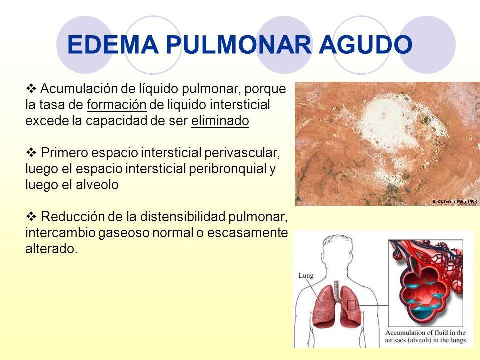 EDEMA PULMONAR AGUDO Acumulación de líquido pulmonar, porque la tasa de formación de liquido intersticial excede la capacidad de ser eliminado Primero