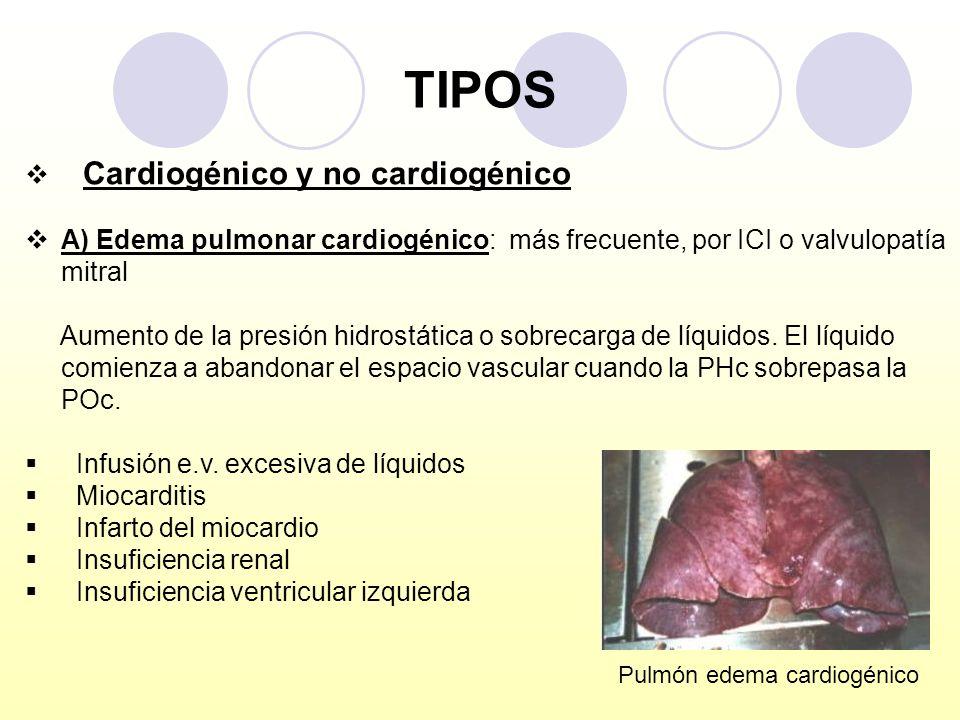 TIPOS Cardiogénico y no cardiogénico A) Edema pulmonar cardiogénico: más frecuente, por ICI o valvulopatía mitral Aumento de la presión hidrostática o