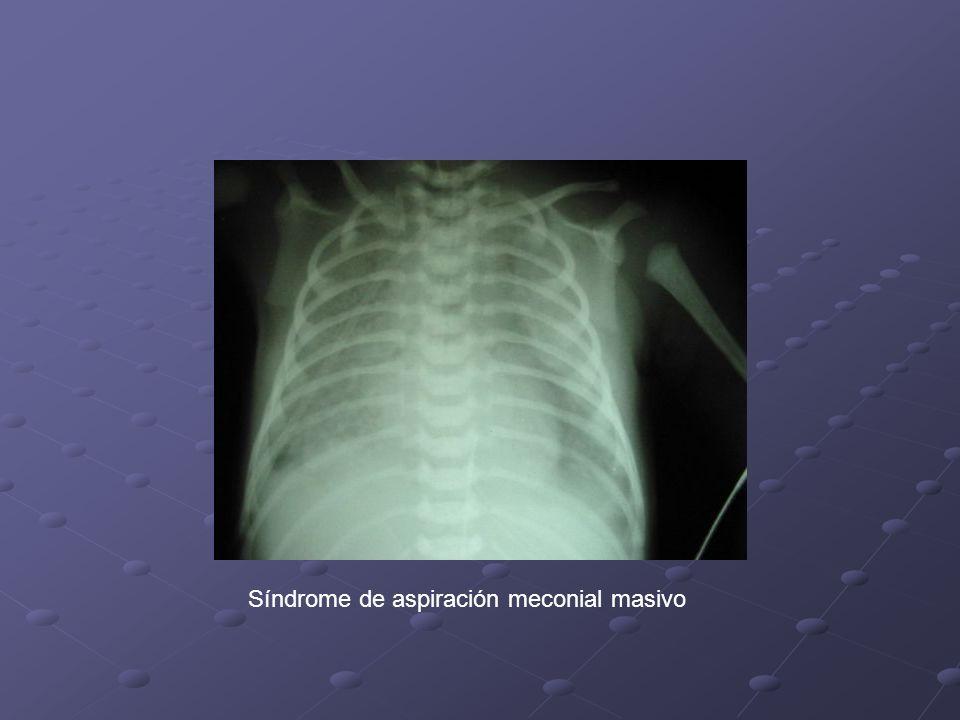 Pasos iniciales de la Reanimación En los RN que tienen meconio espeso o fluido y que nacen deprimidos se procede a aspirar la tráquea mediante intubación.
