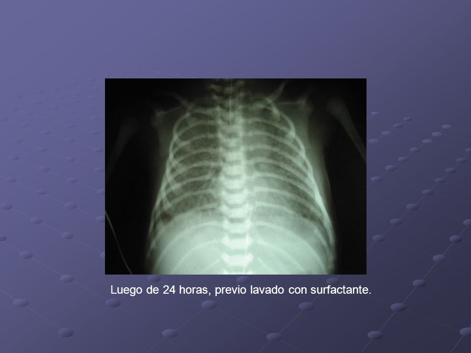 Manejo especifico Considerar uso de catéter umbilical o línea arterial periférica para monitorización.