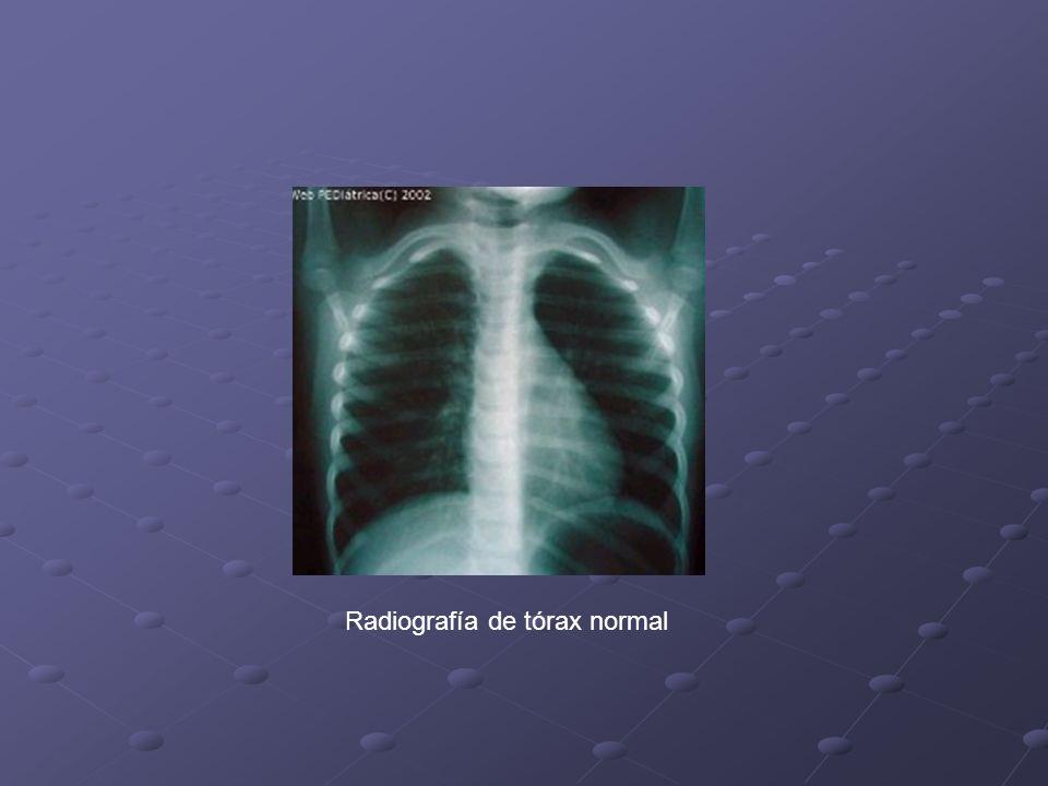 Clínica Signos generales de dificultad respiratoria Tórax distendido por hiperinsuflación Abundante signología húmeda difusa Frecuente asociación a infección connatal