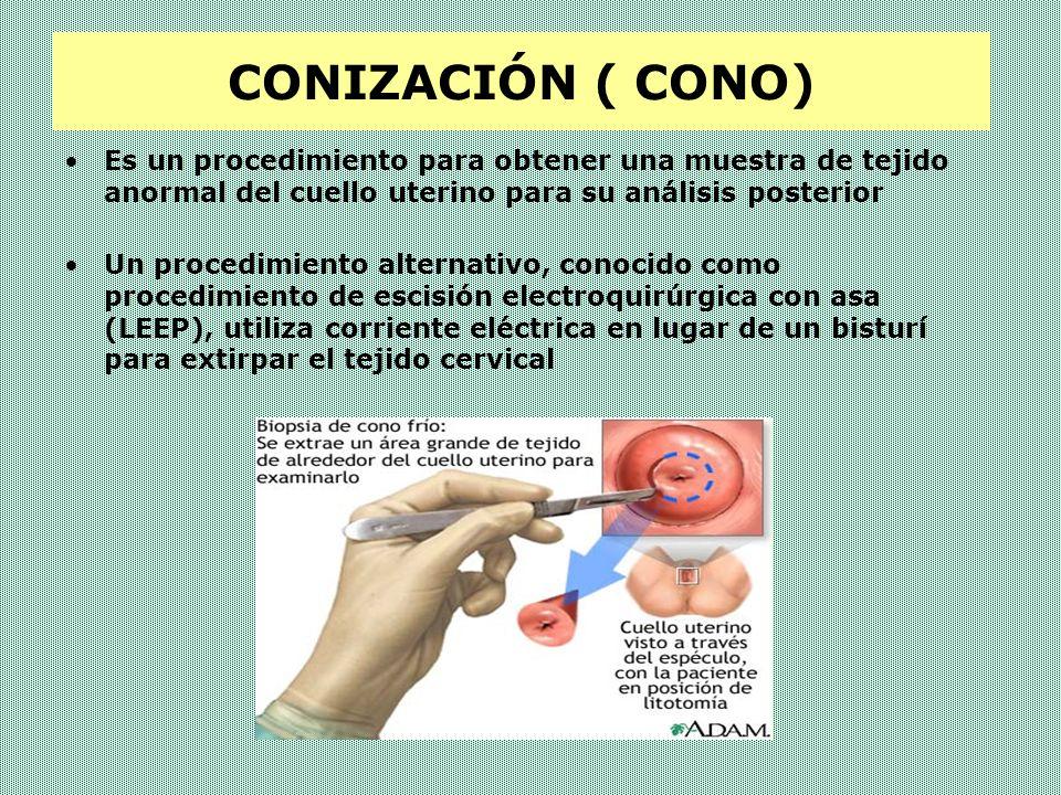 CONIZACIÓN Este es un procedimiento quirúrgico que se realiza bajo sedación intravenosa o anestesia general, con el propósito de diagnosticar cambios precancerosos en el cuello uterino.