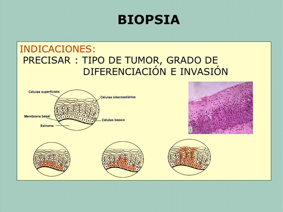 TIPOS DE BIOPSIAS Por punción Por escisión Legrado bióptico Biótomo