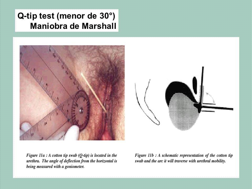 MEDICIÓN DE ORINA RESIDUAL INDICACIONES: Evaluación pre y post operatoria, en casos de incontinencia, histerectomía vaginales.