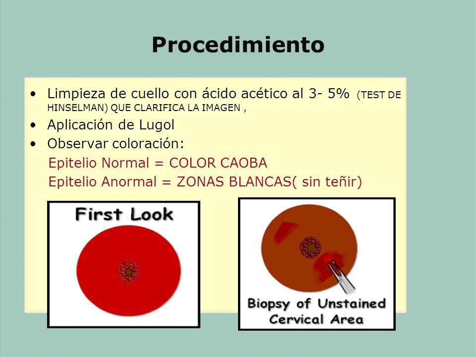 EL TEST DE SCHILLER La SOLUCION DE LUGOL, permite apreciar: –ZONAS YODOPOSITIVAS, RICAS EN GLUCOGENO, DE COLOR MARRON –ZONAS YODOCLARAS, DE COLOR AMARILLO-CAFÉ CLARAS, QUE SE DEBEN AL EPITELIO PAVIMENTOSO ATROFICO –ZONAS YODONEGATIVAS, QUE IDENTIFICAN AL EPITELIO AGLUCOGENICO, QUE PUEDE CORRESPONDER A DIVERSAS ALTERACIONES DEL EPITELIO PAVIMENTOSO