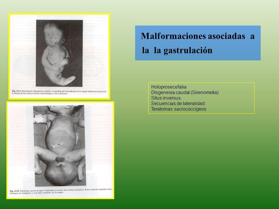 Malformaciones asociadas a la la gastrulación Holoprosecefalia Disgenesia caudal (Sirenomelia) Situs inversus. Secuencias de lateralidad. Teratomas sa