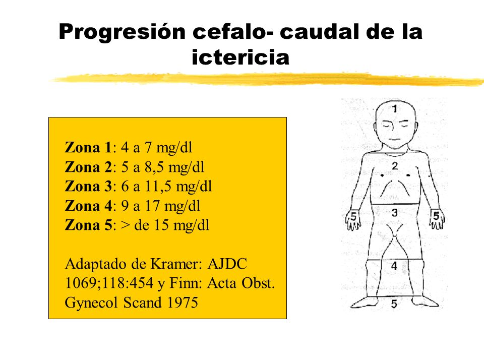 Progresión cefalo- caudal de la ictericia Zona 1: 4 a 7 mg/dl Zona 2: 5 a 8,5 mg/dl Zona 3: 6 a 11,5 mg/dl Zona 4: 9 a 17 mg/dl Zona 5: > de 15 mg/dl