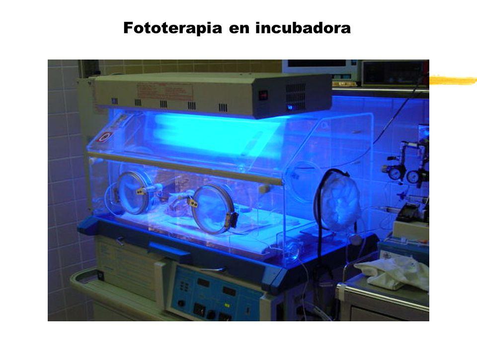 Fototerapia en incubadora