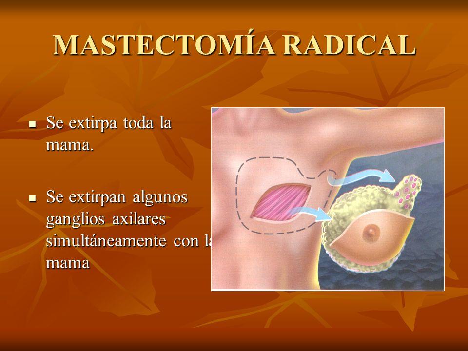 MASTECTOMÍA RADICAL Se extirpa toda la mama. Se extirpa toda la mama. Se extirpan algunos ganglios axilares simultáneamente con la mama Se extirpan al