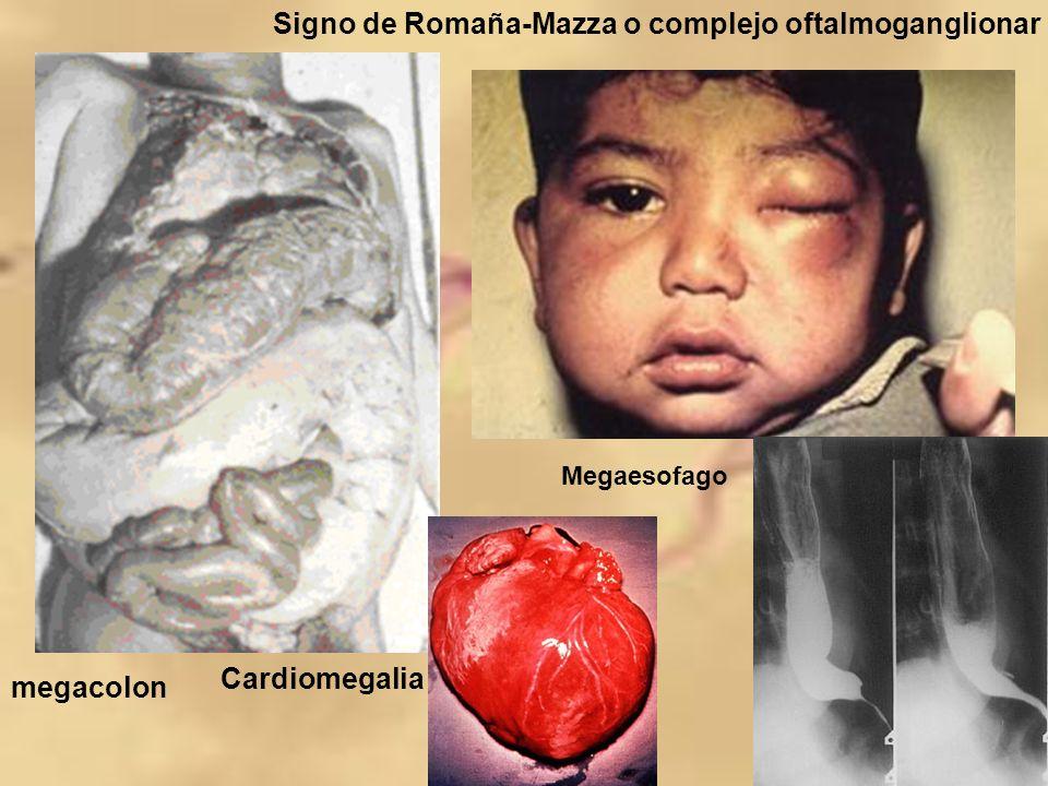 megacolon Signo de Romaña-Mazza o complejo oftalmoganglionar Cardiomegalia Megaesofago