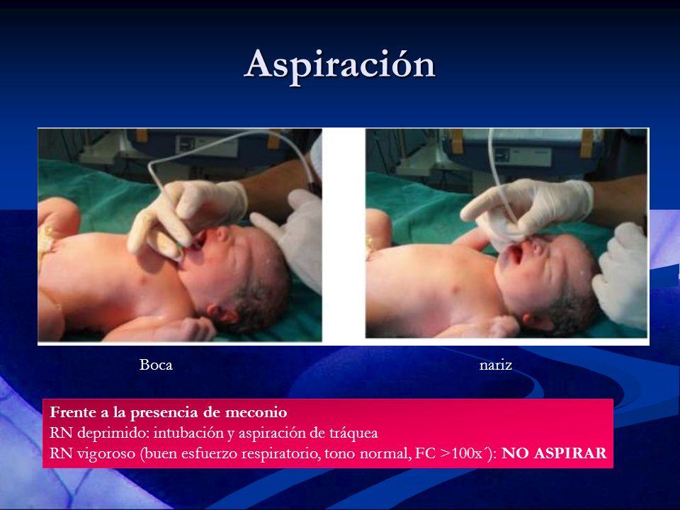 Aspiración Bocanariz Frente a la presencia de meconio RN deprimido: intubación y aspiración de tráquea RN vigoroso (buen esfuerzo respiratorio, tono n