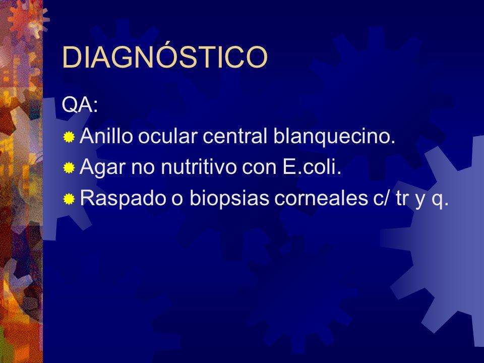 DIAGNÓSTICO QA: Anillo ocular central blanquecino. Agar no nutritivo con E.coli. Raspado o biopsias corneales c/ tr y q.