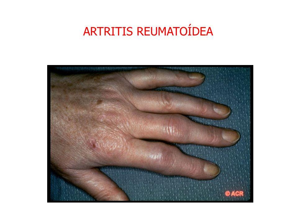 CONSECUENCIAS SISTEMICAS FIEBRE –TNF, IL-1,IL-6 LEUCOCITOSIS: –BACTERIA : NEUTROFILOS –PARASITOS : EOSINOFILOS –VIRUS: LINFOCITOS LEUCOPENIA –INFECCIONES VIRALES, SALMONELLA, RICKETTSIA REACCION IMMUNOLOGICA – AUMENTA EL NIVEL DE ALGUNAS SUSTANCIAS (PROTEINA C-REACTIVA)