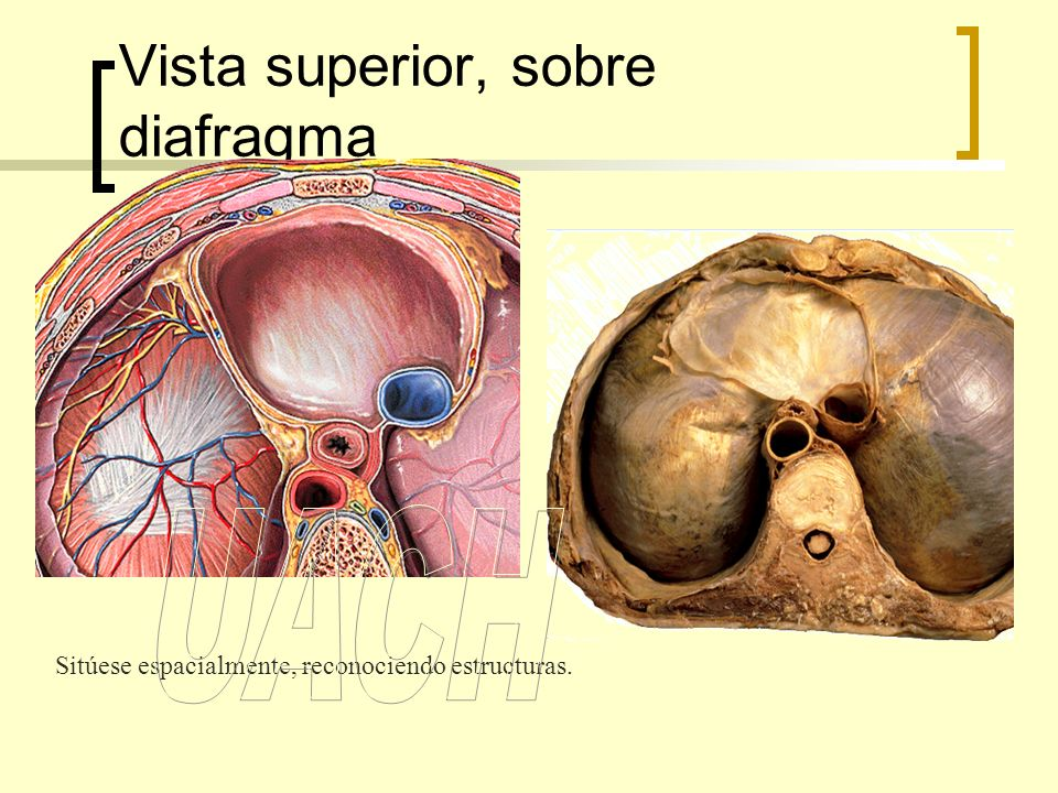 Válvulas del corazón en sístole Trígono fibroso derecho Trígono fibroso izquierdo 120 mm110 mm