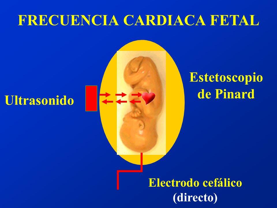 15 seg 15 latidos ACELERACIONES Mov. fetal