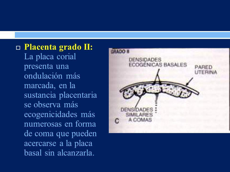 Placenta grado II: La placa corial presenta una ondulación más marcada, en la sustancia placentaria se observa más ecogenicidades más numerosas en for