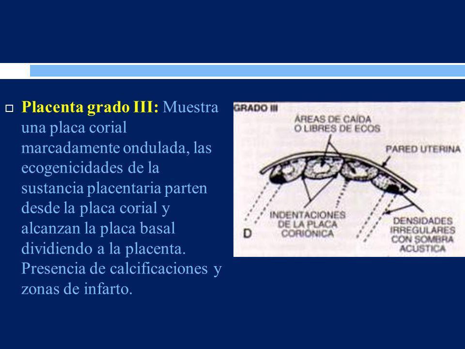Placenta grado III: Muestra una placa corial marcadamente ondulada, las ecogenicidades de la sustancia placentaria parten desde la placa corial y alca