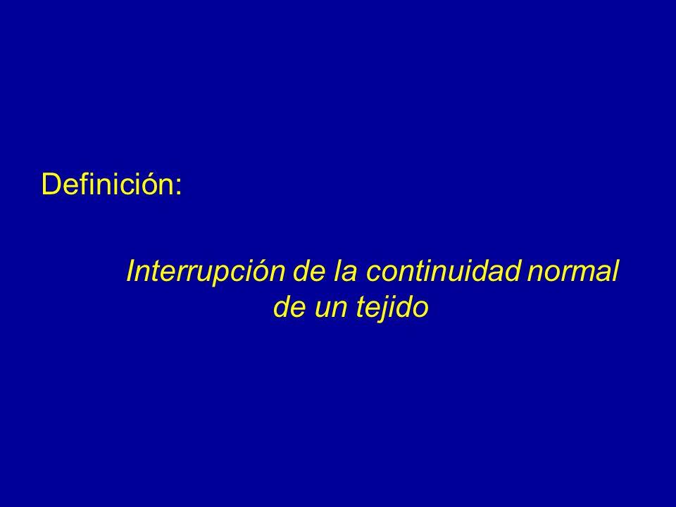Definición: Interrupción de la continuidad normal de un tejido
