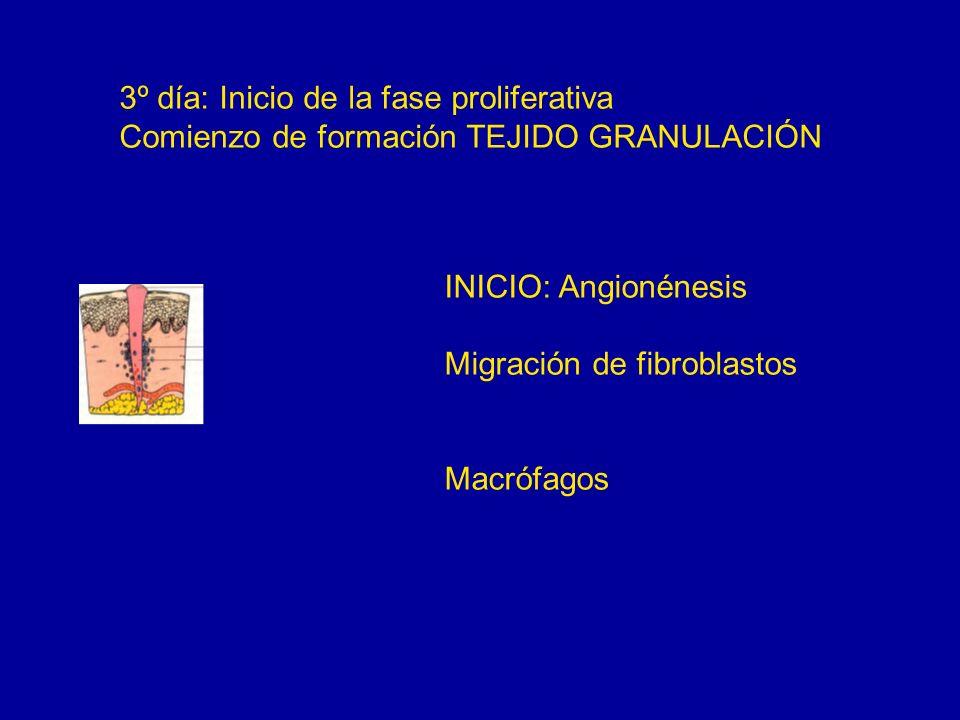 3º día: Inicio de la fase proliferativa Comienzo de formación TEJIDO GRANULACIÓN INICIO: Angionénesis Migración de fibroblastos Macrófagos