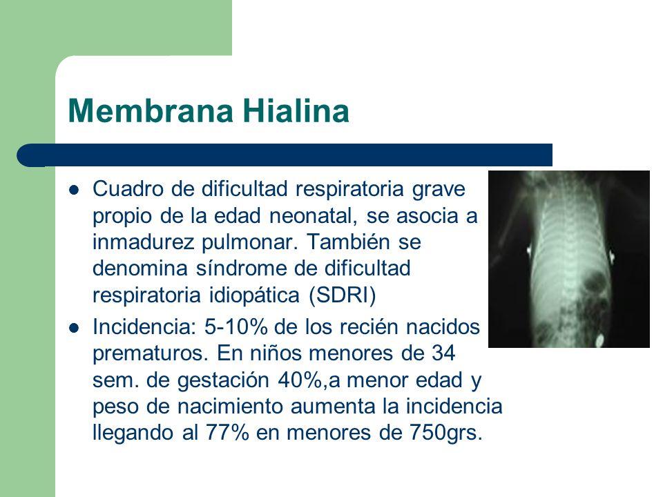 Membrana Hialina Cuadro de dificultad respiratoria grave propio de la edad neonatal, se asocia a inmadurez pulmonar. También se denomina síndrome de d