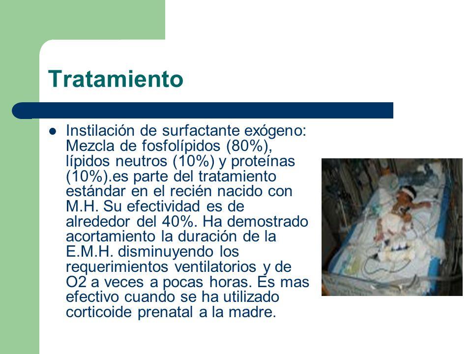 Tratamiento Instilación de surfactante exógeno: Mezcla de fosfolípidos (80%), lípidos neutros (10%) y proteínas (10%).es parte del tratamiento estánda