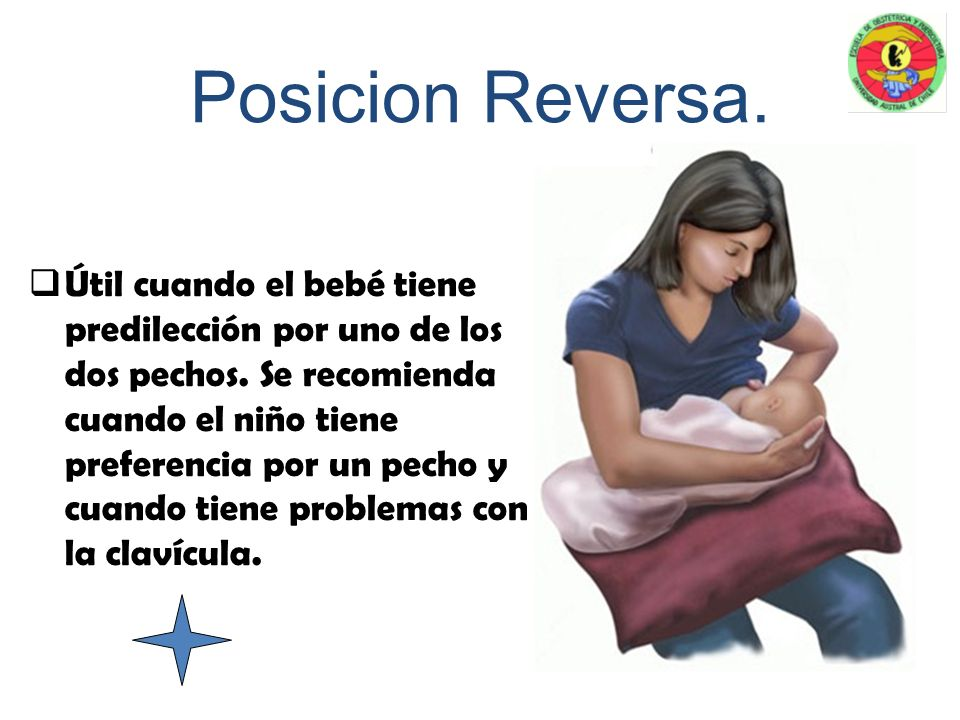 canasto o de pelota. Recomendada en caso de cesáreas, grietas y amamantamiento simultáneo de gemelos. Se ubica al niño bajo el brazo del lado que va a