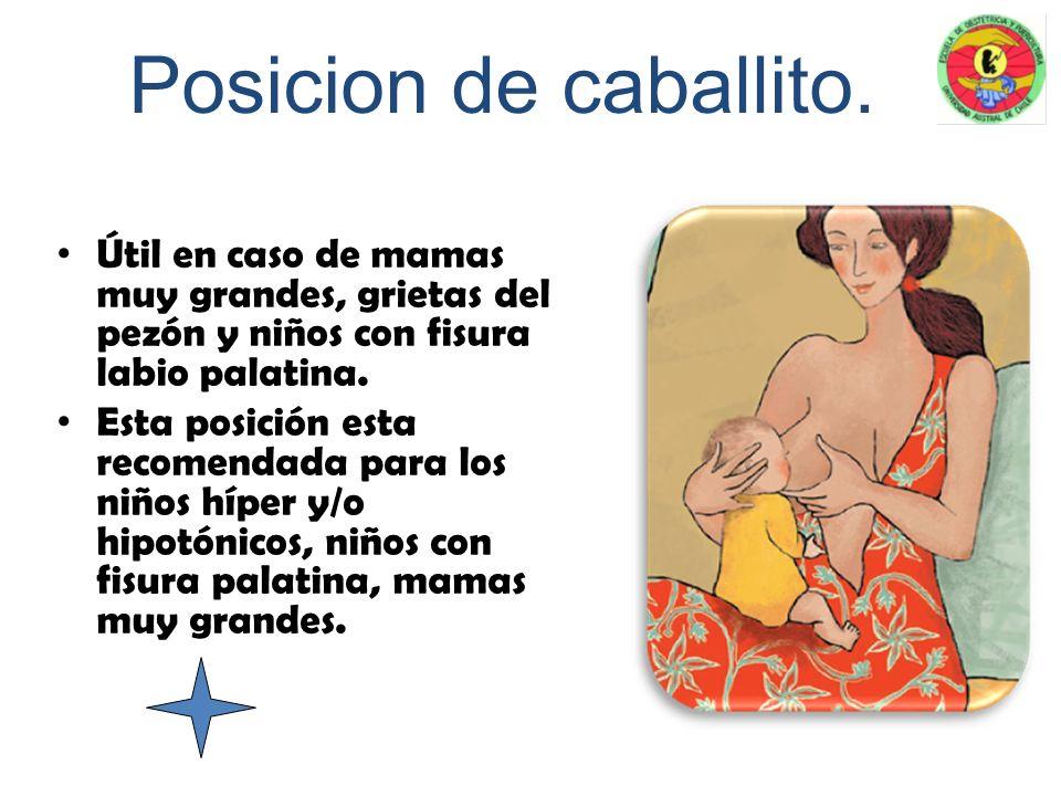 Posicion Reversa. Útil cuando el bebé tiene predilección por uno de los dos pechos. Se recomienda cuando el niño tiene preferencia por un pecho y cuan