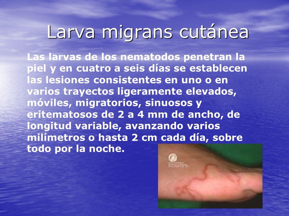 Larva migrans cutánea Las larvas de los nematodos penetran la piel y en cuatro a seis días se establecen las lesiones consistentes en uno o en varios