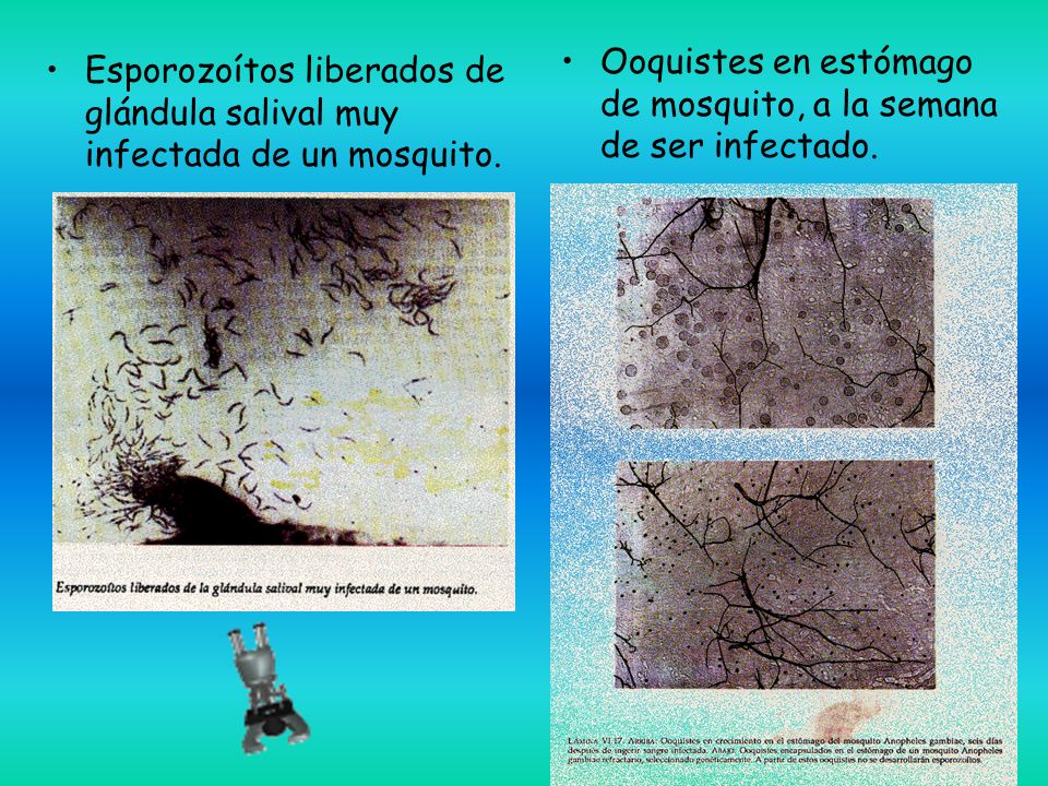 Esporozoítos liberados de glándula salival muy infectada de un mosquito.